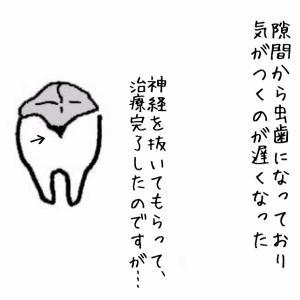 神経抜いた歯が痛い…!電動歯ブラシデビュー
