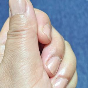 ずんぐりむっくりした手。