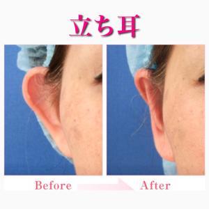 「立ち耳」の手術について