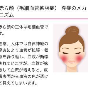 赤ら顔の治療について