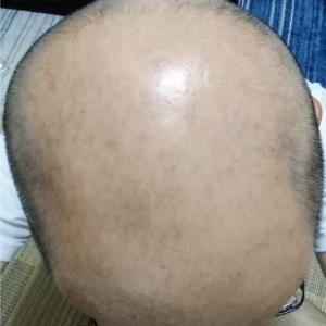 バリカンを買い、頭を刈りすぎた愉快なおっさん