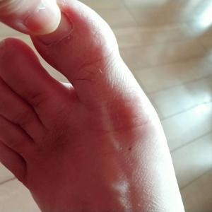 自宅でできる、足趾のモビリティ