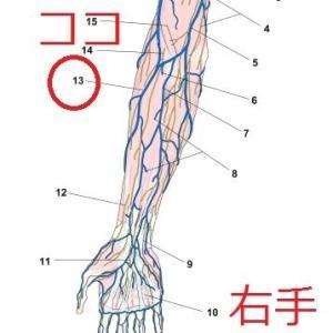 【医学部再受験の闇】ど底辺読者にだけに教える点滴のマル秘極意!~見えない血管をを見つける裏技~