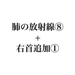 【8/12】肺の放射線⑧+右首追加①(入院16日目)~微熱とダルさよコンニチハ〜