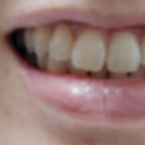 歯のホワイトニングシートのその後