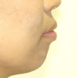 【症例】重度の口ゴボ(歯槽性の上下顎前突と口唇閉鎖不全)の治療例