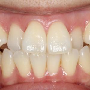 【症例】八重歯と部分的な反対咬合の治療例