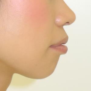 【症例】重度の出っ歯、口ゴボ、過蓋咬合の治療例
