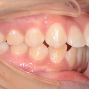【症例】中〜重度の歯槽性の上下顎前突、口唇閉鎖不全の治療例