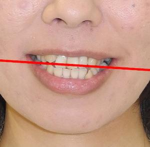 【症例】咬合平面の傾斜(cant)、ガタガタ歯、八重歯、口ゴボ、開咬の治療例