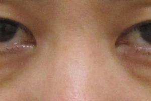 40代女性 目の下のクマ治療:結膜脱脂+グロスファクター注入