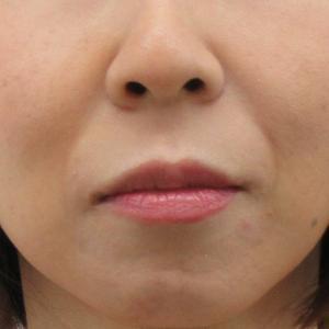 法令線(鼻唇溝)へのグロスファクター(GF)注射その後