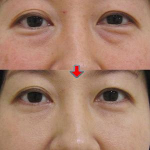 比較画像あり 女性の目の下のクマ、たるみ治療:結膜脱脂+グロスファクター注入