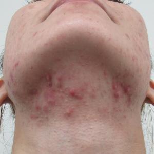 画像あり30代女性 大人ニキビ治療
