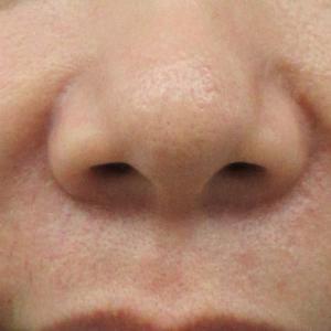 【比較画像あり】法令線(鼻唇溝)へのFリフトとグロスファクター(GF)注射ミックス
