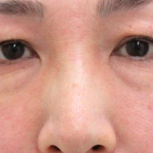 【比較画像あり】目の下のたるみ・目の下のクマ