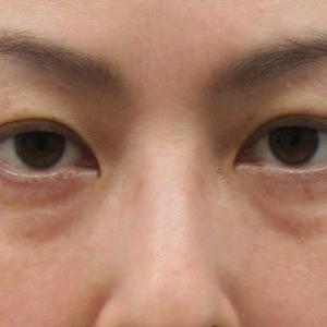 【比較画像あり】目の下のたるみ・目の下のクマ、膨らみ、