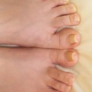 《ネイルサロンの巻き爪矯正の巻》巻き爪 矯正 体験談