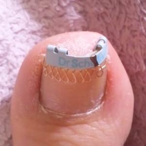 《巻き爪ブロックと巻き爪クリップの巻》自分で巻き爪矯正 体験談