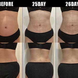 脂肪吸引(腹部・腰):25日目・26日目