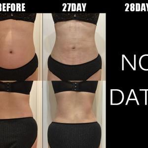 脂肪吸引(腹部・腰):27日目・28日目