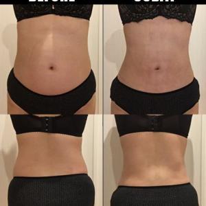 脂肪吸引(腹部・腰):30日目