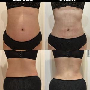 脂肪吸引(腹部・腰):31日目