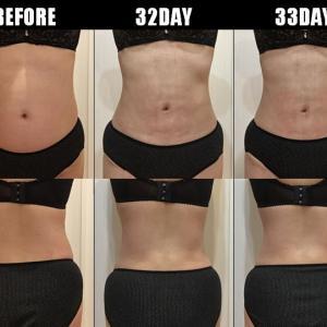 脂肪吸引(腹部・腰):32日目・33日目