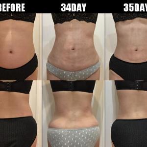 脂肪吸引(腹部・腰):34日目・35日目