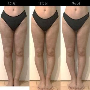 脂肪吸引(太もも):150日目・・・5ヶ月