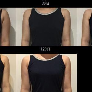 脂肪吸引(二の腕):120日目・・・4ヶ月