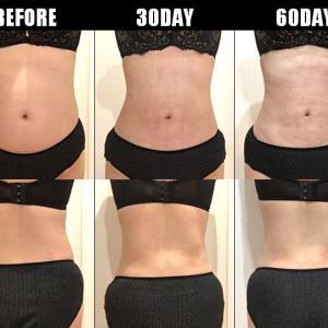脂肪吸引(腹部・腰):60日目・・・2ヶ月