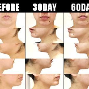 脂肪吸引(顔):60日目・・・2ヶ月