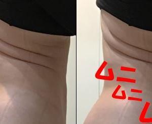 脂肪吸引(腹部・腰):66日目