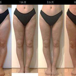 脂肪吸引(太もも):180日目・・・6ヶ月