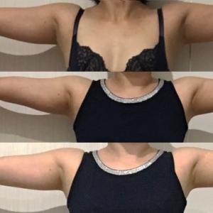 脂肪吸引(二の腕):150日目・・・5ヶ月