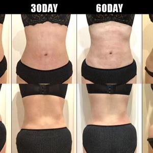 脂肪吸引(腹部・腰):90日目・・・3ヶ月