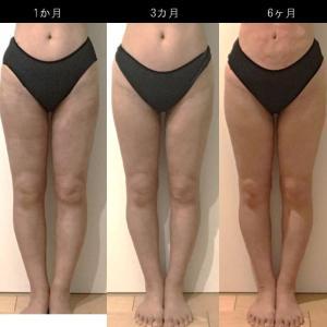 脂肪吸引(太もも):7ヶ月
