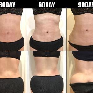 脂肪吸引(腹部・腰):120日目・・・4ヶ月
