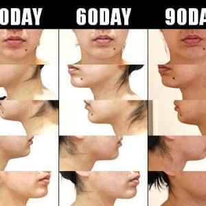 脂肪吸引(顔):120日目・・・4ヶ月