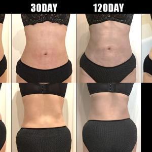 脂肪吸引(腹部・腰):150日目・・・5ヶ月