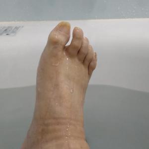 足の浮腫(久し振り)