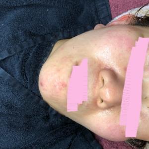 30代女性★ニキビや湿疹が改善された美容法