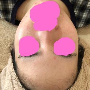 ニキビやアトピーを改善できる♡漢方ピーリングで肌のデトックスができる