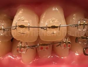 矯正治療18(324日目・下の前歯にも装置がついた)