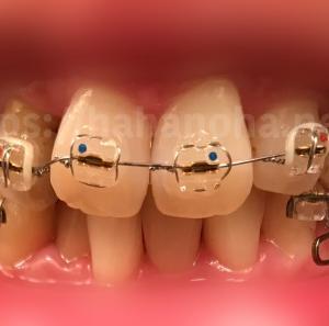 矯正治療17(303日目・ついに前歯に装置が!)