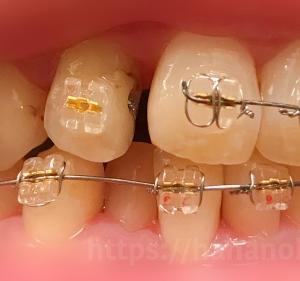 矯正中に前歯の虫歯治療をしました