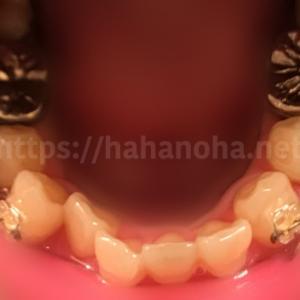 矯正治療の写真まとめ(下の歯)