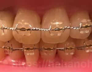 矯正治療23(448日目・全ての歯にブラケットがついた)