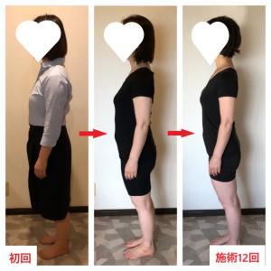 2020.7月のキャンペーン《長崎・大村痩身エステサロン》